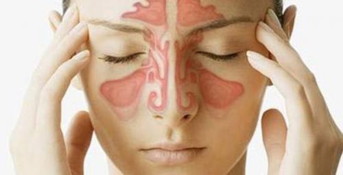 3 bài thuốc chữa viêm xoang nổi tiếng hiệu quả ngay lần đầu áp dụng - Ảnh 1